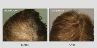 多くの方はご自分のご両親や祖父母の方が代々薄毛であると自分の抜け毛や薄毛の原因は遺伝的要因であると考えたり、体毛が...