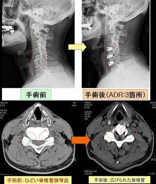 仕事 ヘルニア 頚椎 椎間板