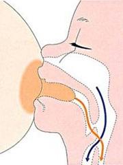 陥没乳頭では母乳はあげにくかったですね、ある程度、乳首も赤ちゃんが吸える長さがないといけないようなので・・・...