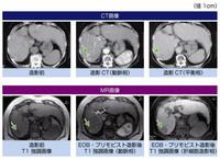 血管 と は 腫 肝