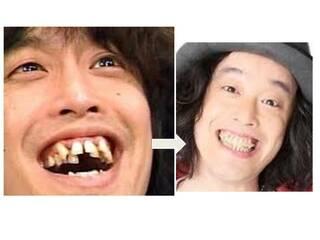 つい 歯並び や いちろう
