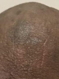 が 黒い ちんこ 【画像あり】ペニスのぶつぶつ、こんなに種類があります!