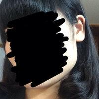 これ結構えら張ってますよね? ほんとに嫌で何年も髪を結ばずに すごしています 整形するしかないんですか?