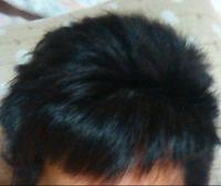 薄毛に似合う髪型  ハゲとまでは行かないのですがかなり密度が低く困ってます。(髪質は剛毛なのでagaではないと思います)伸びれば何とかなるかなど思っていたのですが伸びた方がスカスカで更に見た目が悪くな ってしまい伸ばそうにも伸ばせません。  髪の毛ぎ少ない場合はどのような髪型にするのがベストでしょうか?   ちなみに今はこんな位で サイドから流してる感じです