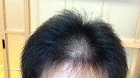 ヘアスタイリストなどの方に質問です。 私は髪が薄いのですが、この髪で可能なカッコいい髪型を教えて頂けますでしょうか?