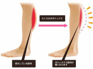 縄跳び ふくらはぎ 筋肉 痛 縄跳びで筋肉痛!ふくらはぎが痛い場合の対処法と注意点とは