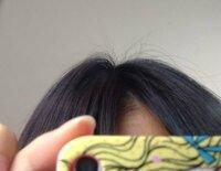 画像あり こんな酷いアホ毛どーにかしたい…  こんな酷いアホ毛どーにか出来ないですか?泣  髪の毛の乾かし方や洗い方は美容院の人に教えてもらったやり方なんですけど、なっかなか治りません泣
