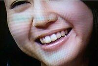 堀北真希の前歯2本はどう見ても刺し歯ですか? 向かって右下に銀歯が見えますが、奥歯の方はもしかして虫歯がたくさんありますか? 映画ATARUのメイク中じゃないですよねえ・・・