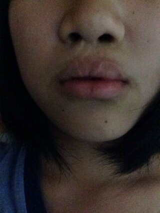 有名人 裂 口唇 口蓋