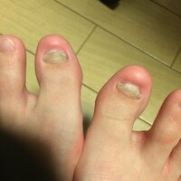 フットネイルについて質問です。  恥ずかしながら、私は足の爪が汚いです。 幼い頃に両足の親指の爪が剥がれてから、何故か綺麗に生えてきません。 浮いてしまっていて布団などで引っ掛ける と危ないので、画像のように切ってしまっています。 やすりで磨いたりしても、綺麗になりません。 皮膚科には、ほっとけばそのうち治るよと言われましたが、10年経ってもこんな感じです…。 ペディキュアを塗...