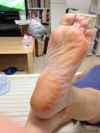足の裏がオレンジ色に、、   自己免疫性肝炎という免疫の病気にかかっている母の足の裏が、いきなりオレンジ色になっていました。  濡れタオルで拭いてみると少し取れたのですが汚れたとこ ろにいたわけでも...
