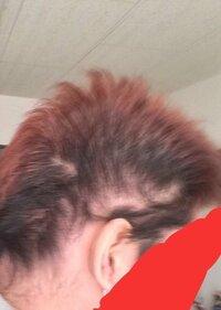 頭のサイド、側頭部の髪の毛について。 私の側頭部はある境目で上向きと下向きに生えています。これがあまりにもキツイ癖毛なのでハゲて見られるんじゃないかと心配してます。  実際側頭部が薄くなってるかもしれ...