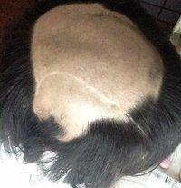 【グロ画像注意】抜毛症の中学3年生です。  小学校中学年から髪を抜き初め、中学受験生になってもこの癖がやめられません。  理由は、抜いた髪の毛の先端に白いもの(毛根鞘)が付着している のですが、その毛...
