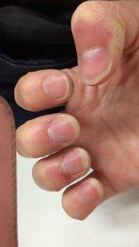 こんな汚い爪でもネイルってできるのでしょうか? 3日後に結婚式を控えており爪の汚い形だけがひっかかりネイルに行くのもためらっているのですが、こんな爪でも少しは綺麗に見えたりできますか? ネイルは諦めた...