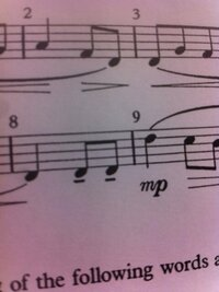 この、音符の下にある太めの短い線はなんと呼ばれる記号ですか?