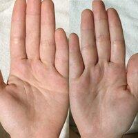 ますかけ線?手相を見てください。  17歳、女、学生です。  よくテレビでみかける手相とは違く、調べてみると、ますかけ線というのがあると知りました。  右手は繋がってるのですが左手は 微妙です。  こ...