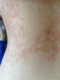 一週間くらい前から背中とお腹と胸周りに赤く湿疹みたいになっていてずっと痒いんです これってなんなんですかね?