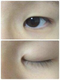 この目は蒙古襞の張りは強いですか? 解消法としては目頭切開しかないですか? もし他にあったら教えてくださいm(_ _)m