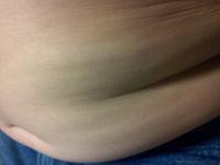 小5で体脂肪率46.2%体重70ウエスト85身長153の小学5年です。 小学3年の冬頃から、からあげなどを食べ、1年半で40~50キロくらい太りました。 こんな体重なのにお腹が三段腹にならず一段です。これはなぜですか?...