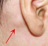 耳 の 後ろ しこり か たい
