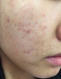 にきび跡についてです。 ニキビは最近減ってきたのですが、 にきび跡がひどいです。 にきび跡に加えて毛穴と産毛が気になります。 [1]顔の産毛はどうすればいいのでしょうか。  剃らないほうがいいのでしょうか...