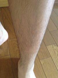 このすね毛気持ち悪いですよね 僕の足は小学生のときそりまくって半分濃くて半分薄いです 正直すね毛はいやです 画像ではわかりにくいですが、が濃いところと薄いところが綺麗に分かれています だからと言って全部剃るともっと濃くなるし  すね毛を薄くする道具ってありますか?(薬局とか市販で売ってそうで薬品じゃない奴)