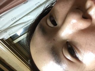 口コミ 湘南美容外科 フォーエバー二重