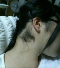 汚い画像すみません うなじがこんなに毛深いのが悩みなんですが、医療脱毛出来るでしょうか? 髪の毛は脱毛できないと聞きました…  同じ部分を脱毛された方、感想をお聞きしたいです。