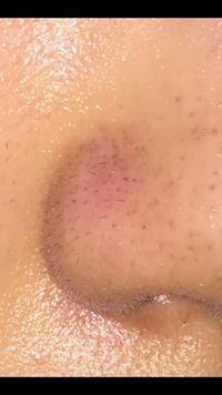閲覧注意 〕 鼻の横から黒い毛が生えてきます… いつもピンセットで抜いてるのですが、いいのでしょうか? またかとの脱毛をしたらなくなりますか?
