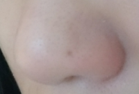 顔相に詳しいかたに、教えていただきたいです。小鼻にあるホクロは金運に関わると聞いたことがあります。私は中途半端な位置にありますが、なんとなく自分でホクロを見た時に、あまり良くないように感じています...