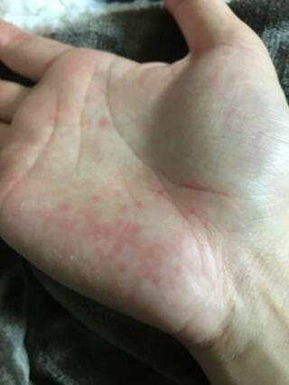なし 湿疹 手のひら かゆい が