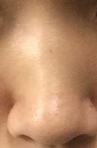 鼻がなんだか腫れてるというかボコってなっています。何かマッサージとかで治せませんか?中3です。