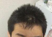 """""""富士額""""と、""""前髪につむじがある""""の違いは何ですか?この写真の場合は、どちらでしょうか?"""