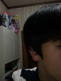こめかみの当たりなんですが 髪が伸びてこないです。 このままだとヘルメットみたいになります。 何か改善策はありますかね?