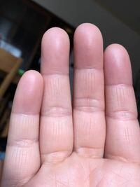 この指の縦線は俵紋手相ですか? ただのシワですか?
