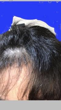 私の前髪はとてもボサボサチリヂリで、綺麗な前髪ではありません。詳しく言うと前髪の表面は、ボサボサで、裏面はチリヂリという最悪な状態です。 結構調べて、ストレートにしようとしたり、く せっ毛を無くそう...