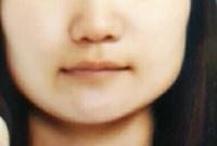 このブスな顔下半分特にエラが張った輪郭を直すには整形しかないでしょうか?どんなメイクしたらいいかも良かったら教えてください。友達に顔下半分残念だねと正直に言われたので可愛くなりたいです
