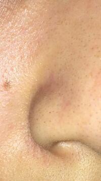 汚いです。 小鼻の毛がどうしても取れません。鼻パックでも取り切れず、抜くのも剃るのも難しいです。 どうすれば良いでしょうか。まだ学生で顔の脱毛は難しいです。