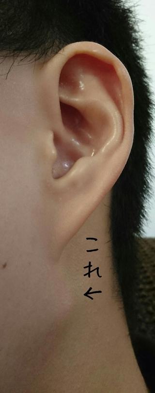 ない しこり 耳 下 の 痛く