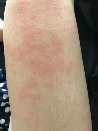 湿疹 太もも 赤い