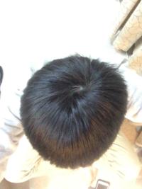 高校生です。 頭の形が悪いので悩んでいます。  この頭の形は女子から見て正直どう思いますか?