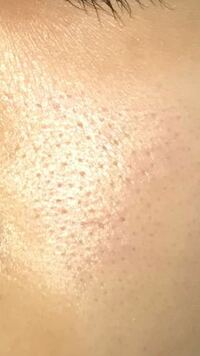 こんばんは。毛穴に悩んでいます。 20代前半女です 頬の毛穴 毛穴の種類はなんでしょうか? どうしたら治りますか?