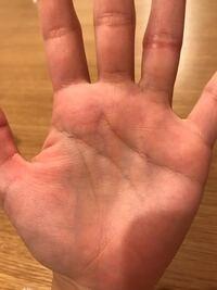 かゆい 手のひら 手白癬(手の水虫)
