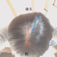 【閲覧注意】※画像あり つむじが2つあります。親の遺伝で画像のように、赤の線と青の線でぱっくり髪が割れています。19の女なのですが、本当に本当に昔からコンプレックスです。また、これだけではなく絶壁頭で...