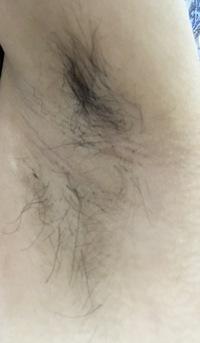 ケノン vio 知恵袋 ケノンで男の超剛毛なVIOを脱毛してみた!!【画像・動画付き】