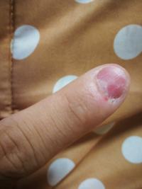 このような汚い爪を綺麗にする方法はありますか? あれば教えてください