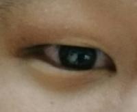 僕は昔から目がコンプレックスで、片方一重で片方奥二重です なので、アイプチをして二重にしたいのですが、うまく行きません 僕の瞼が厚いとかが理由ですか? 何分男なので、周りに相談もしづらく、やり方もYouT...