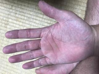 ジンクス 左手 かゆい