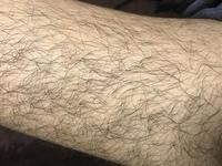 高校生男です。 生まれてから太ももの毛やすね毛を一度も剃った事がありません。 母親からは絶対剃るなと言われ続けてきましたが、流石に気になり始めています。 太ももの毛もすね毛も画像く らい生えているの...