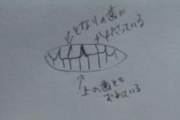 トロンボーンと歯についてです。 私は中学から今(高一)までずっとトロンボーンをやっています。 中学生の時はあまり気にしていなかったのですが、最近色々なことを意識するにつれて、トロンボーンから雑音が聴こえるのに気が付きました。 私は元々歯並びが悪いのか、上の前歯の2本の間が空いている+斜めに生えている+歯が内側に向いている で、マウスピースを安定してあてられず、しかも隙間からスース言います。タ...